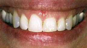 Periodontal Gallery - Crown Lengthening Case 2