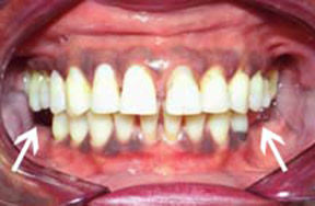 Dentures Gallery Case 2