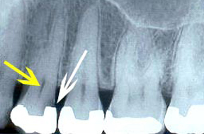 Root Canal Gallery Case 1