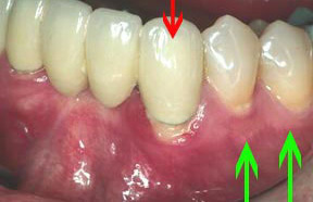 Periodontal Gallery - Soft Tissue Graft Case 2