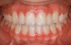 Orthodontic Gallery Case 3